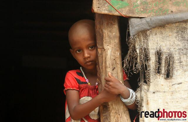 Bald innocent little girl,Welikanda, Sri Lanka - Read Photos